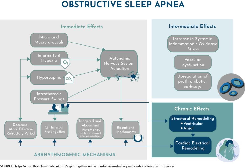 obstructive sleep apnea infographic