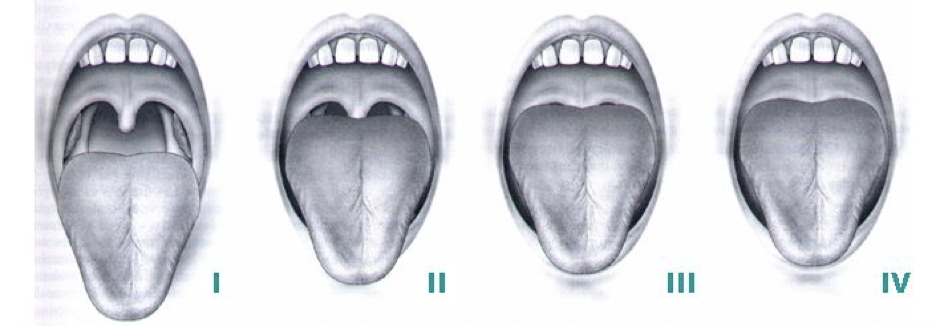 Narrow or Obstructed Airway