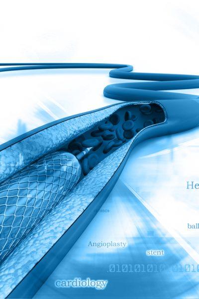 sleep apnea and cardiology