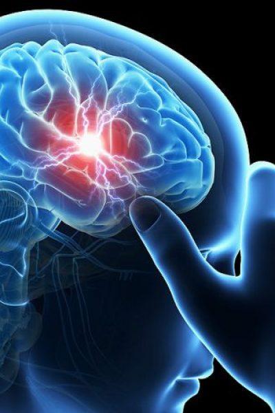 sleep apnea insights on stroke